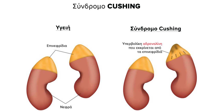 σύνδρομο-Cushing-παιδοδιαβητολόγος-ενδικρινολόγος-παιδίατρος-κεφαλάς-νικόλαος-αθήνα